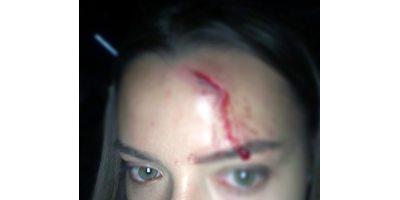 Кавказец напал на девушку