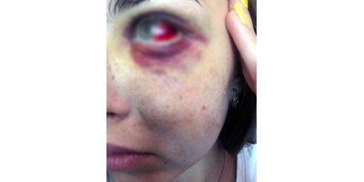 Мужчины избили девушку за отказ знакомиться