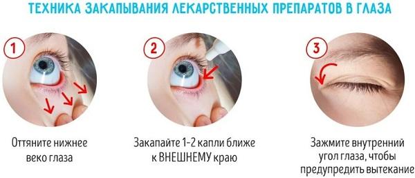 как правильно использовать капли для глаз