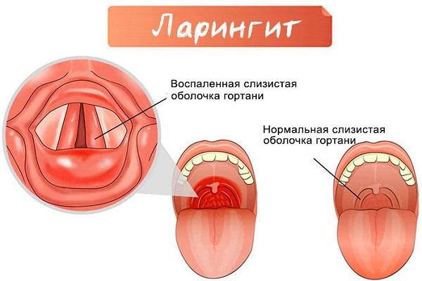 заболевание дыхательных путей ларингит