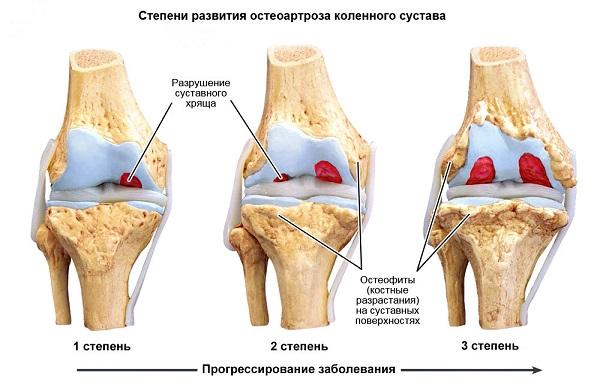 От боли в суставах с инструкцией на русском языке