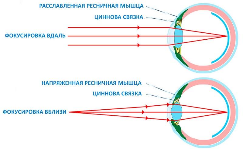 перенапряжение зрения