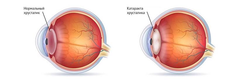 помутнение зрения