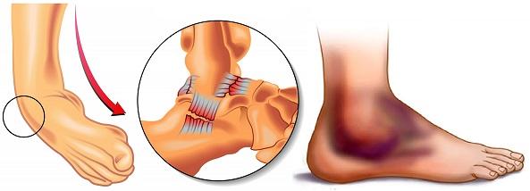 помогает с проблемами суставов и мышц