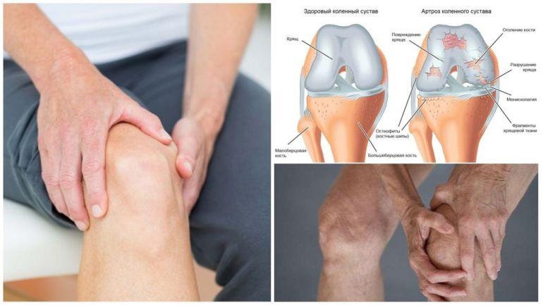 болезни коленей при которых охлаждает крем