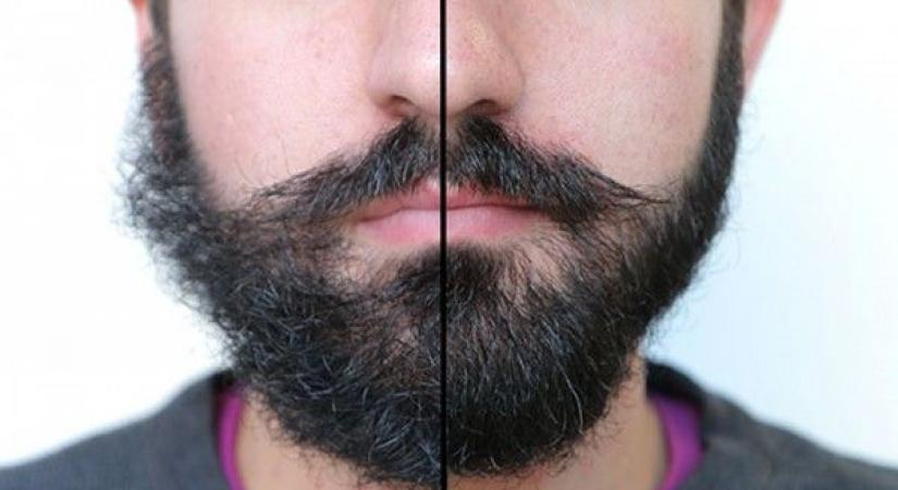 борода фото до и после