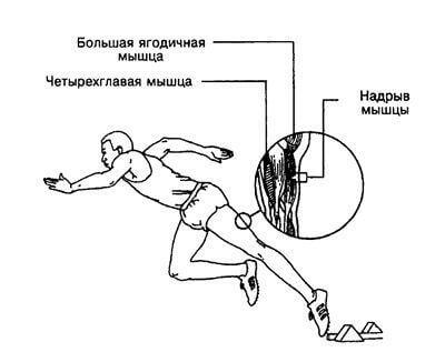 Muscular Balm для лечения после травм