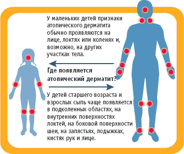 где высыпает дерматит