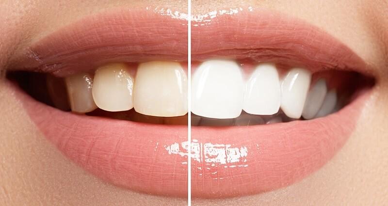тайски порошок для отбеливания зубов